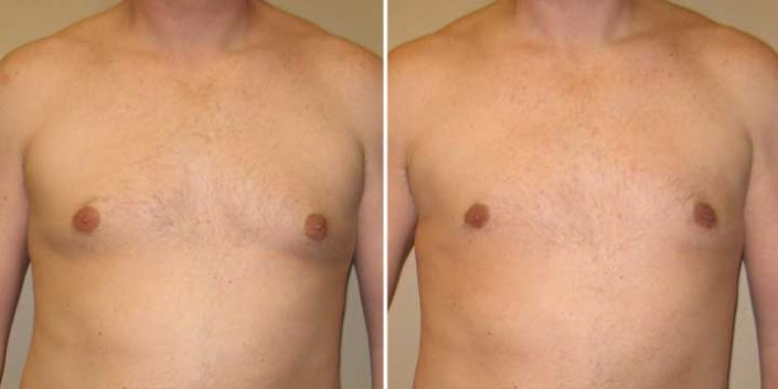 Gynecomastia Before & After Photos