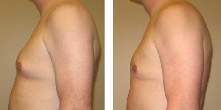 Gynecomastia Before & After Photos