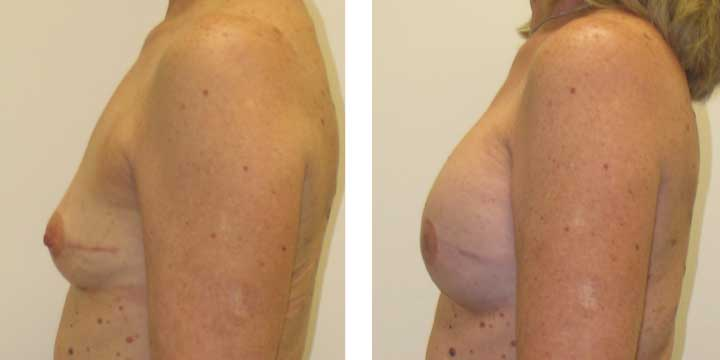 Breast Reconstruction Before and After