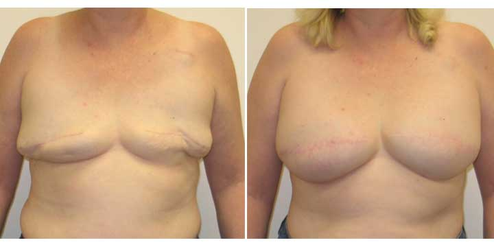 Breast Reconstruction Before and After Photo