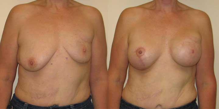 Breast Reconstruction Before and After Picture