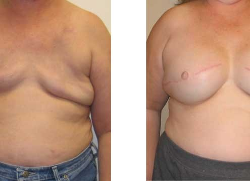 Breast Reconstructive Surgery Before and After