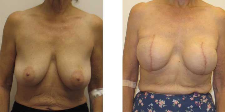 Breast Recontruction Surgery Before and After Images