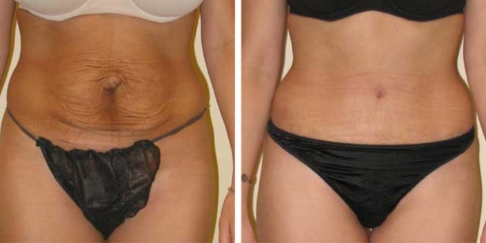 Tummy Tuck Before & After
