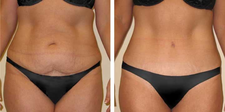 Tummy Tuck Before & After case