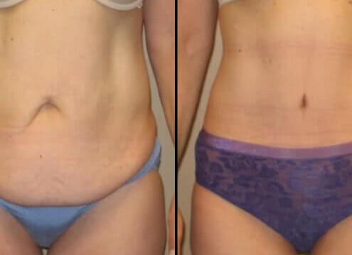 Tummy Tuck Case