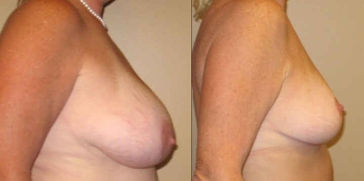Case 19 Breast lift right side