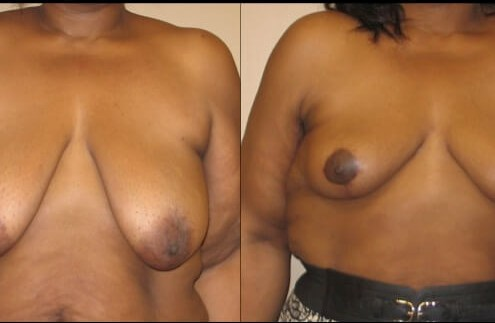 breast lift case 22 front