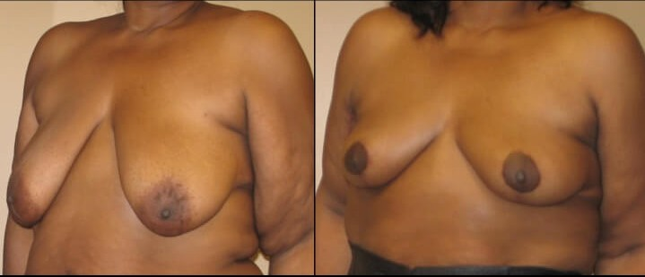 breast lift case 22 left oblique