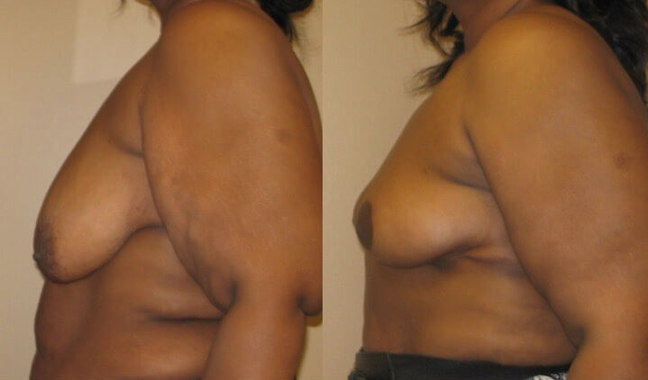 breast lift case 22 left