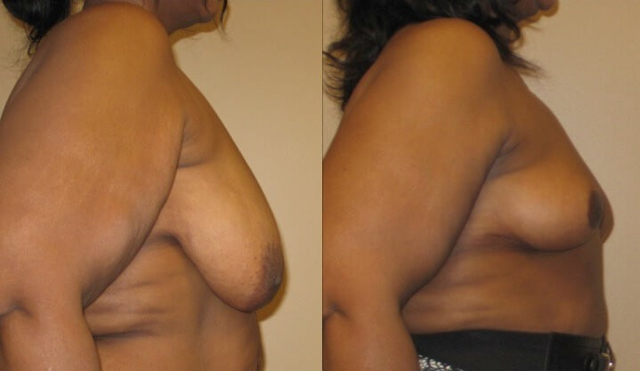 breast lift case 22 right