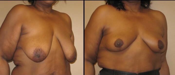 breast lift case 22 right oblique