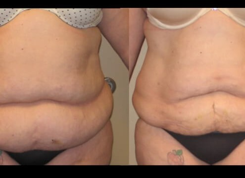 liposuction case 17 front