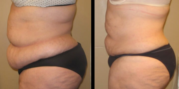 liposuction case 17 left