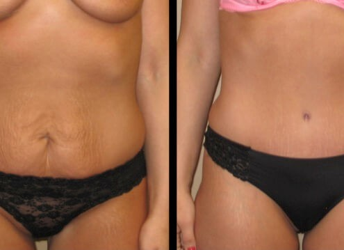Tummy Tuck case 45 front