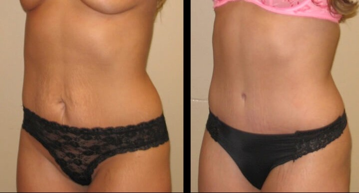 Tummy Tuck case 45 left oblique