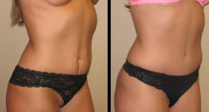 Tummy Tuck case 45 right oblique