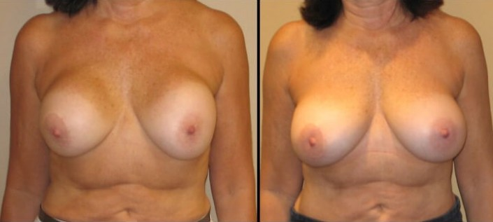 Breast revision augmentation case 6 front