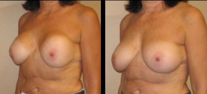 Breast revision augmentation case 6 left oblique