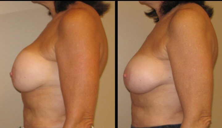 Breast revision augmentation case 6 left