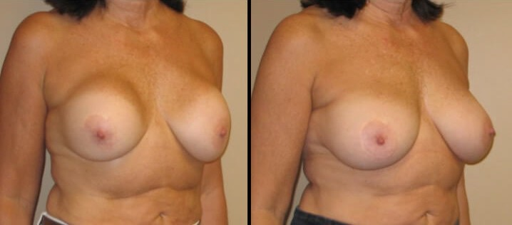 Breast revision augmentation case 6 right oblique