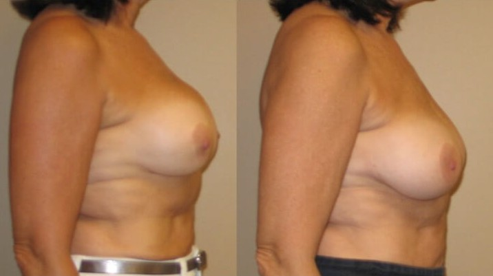 Breast revision augmentation case 6 right