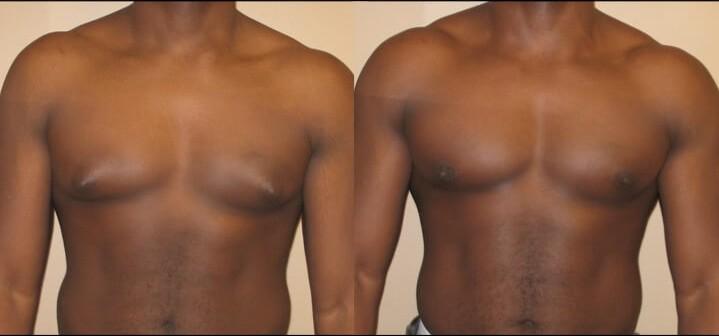 Gynecomastia case 6 front