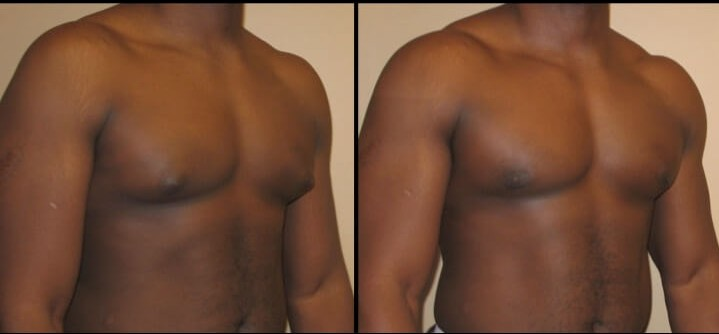 Gynecomastia case 6 right oblique
