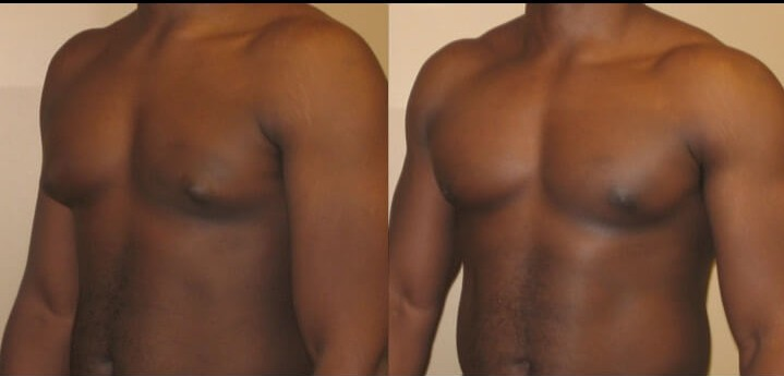 Gynecomastia case 6 left oblique