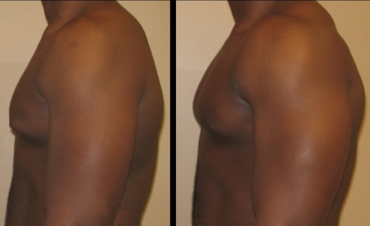 Gynecomastia case 6 right left