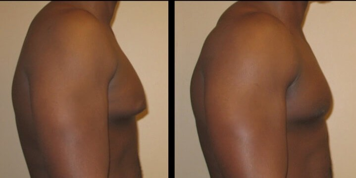 Gynecomastia case 6 right