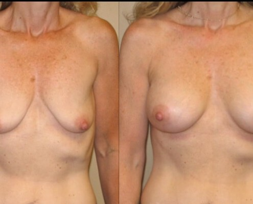 breast lift with implants case 13 front