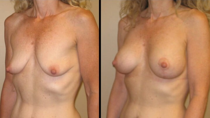 breast lift with implants case 13 left oblique