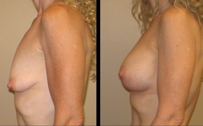 breast lift with implants case 13 left