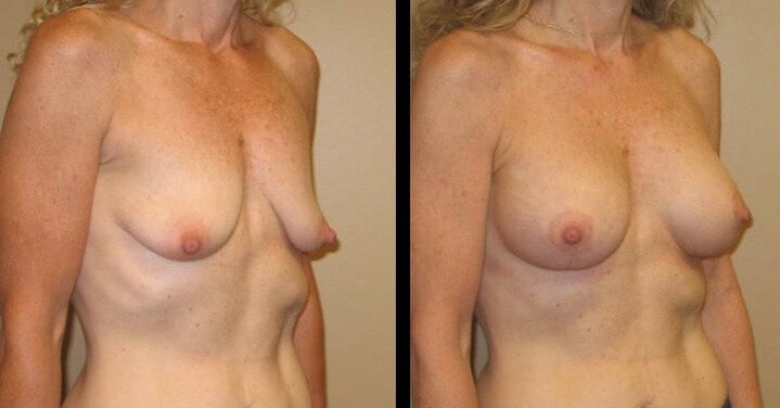 breast lift with implants case 13 right oblique