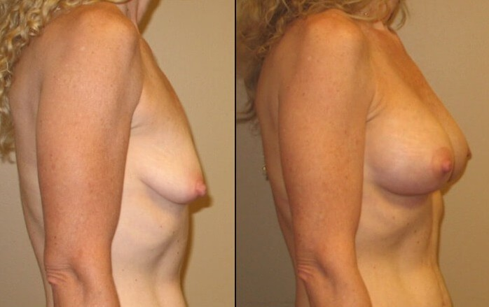 breast lift with implants case 13 right