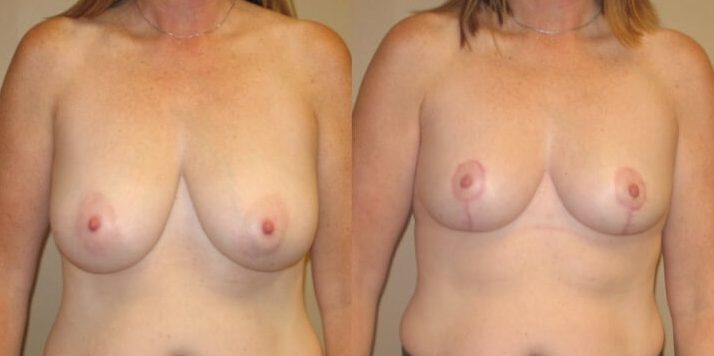 breast lift case 24 front