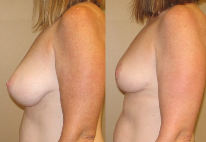 breast lift case 24 left side