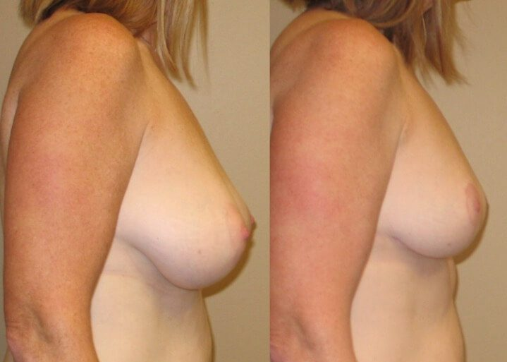 breast lift case 24 right side