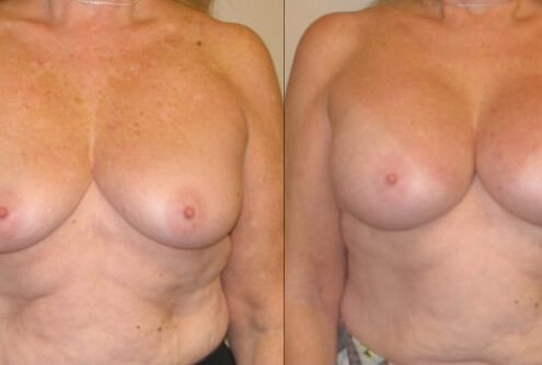 Breast augmentation case 30 front