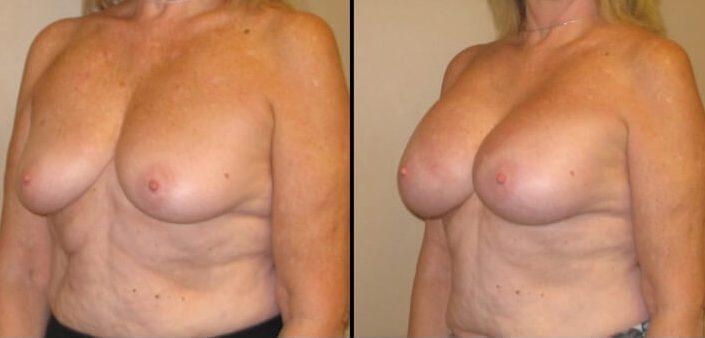 Breast augmentation case 30 4