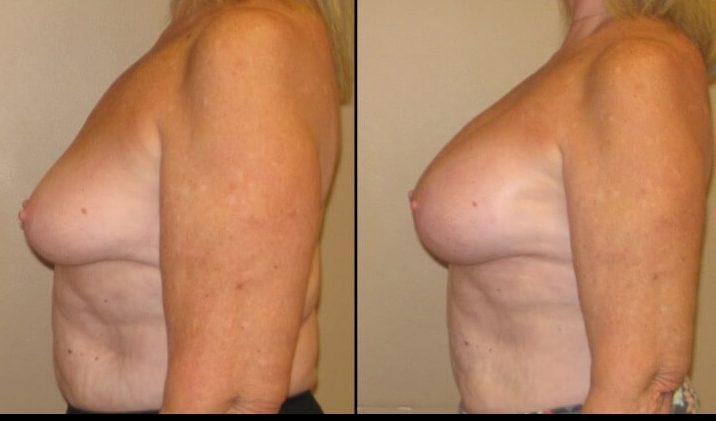 Breast augmentation case 30 3