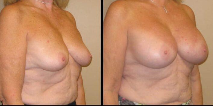 Breast augmentation case 30 2