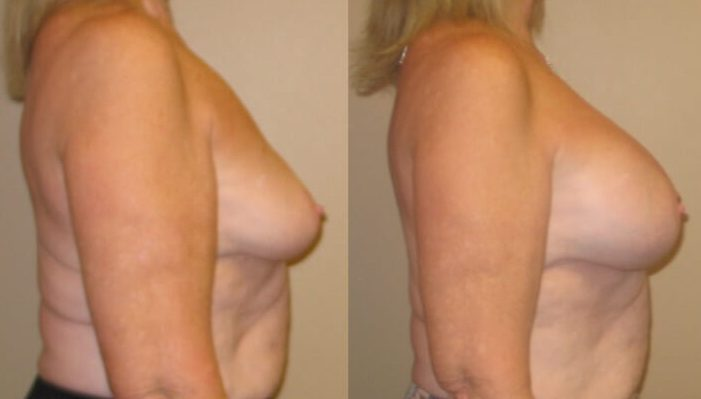 Breast augmentation Case 30