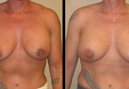 revision breast aug case 9 front