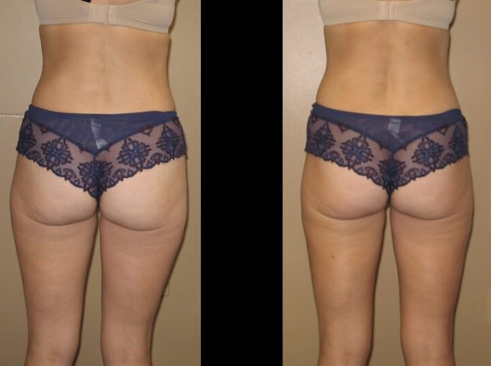 Liposuction Case 27 back
