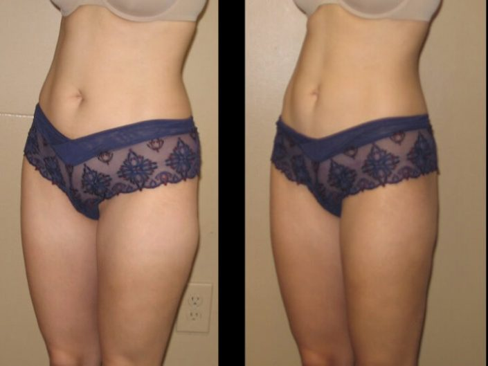 Liposuction Case 27 left oblique