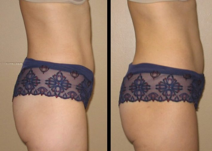 Liposuction Case 27 right side