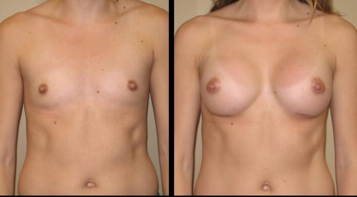 Breast augmentation Case 37 front