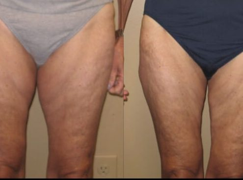 Case 28 liposuction front